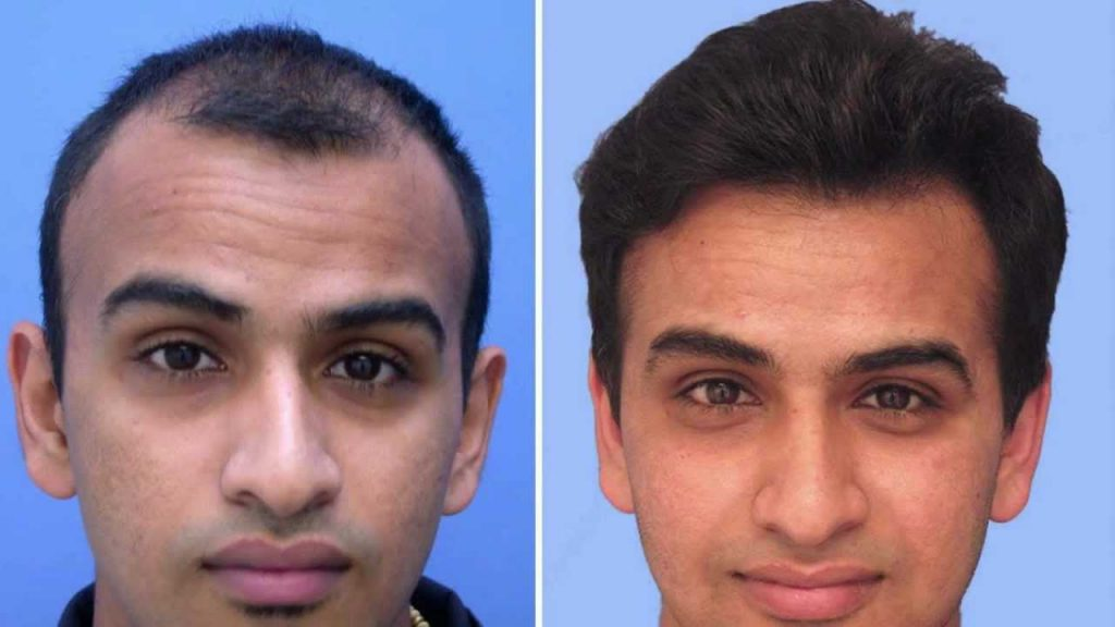 Hair Transplant Doctor In India